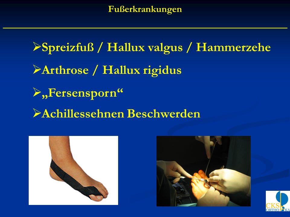 Spreizfuß / Hallux valgus / Hammerzehe Arthrose / Hallux rigidus Fersensporn Fußerkrankungen ____________________________________________ Achillessehn
