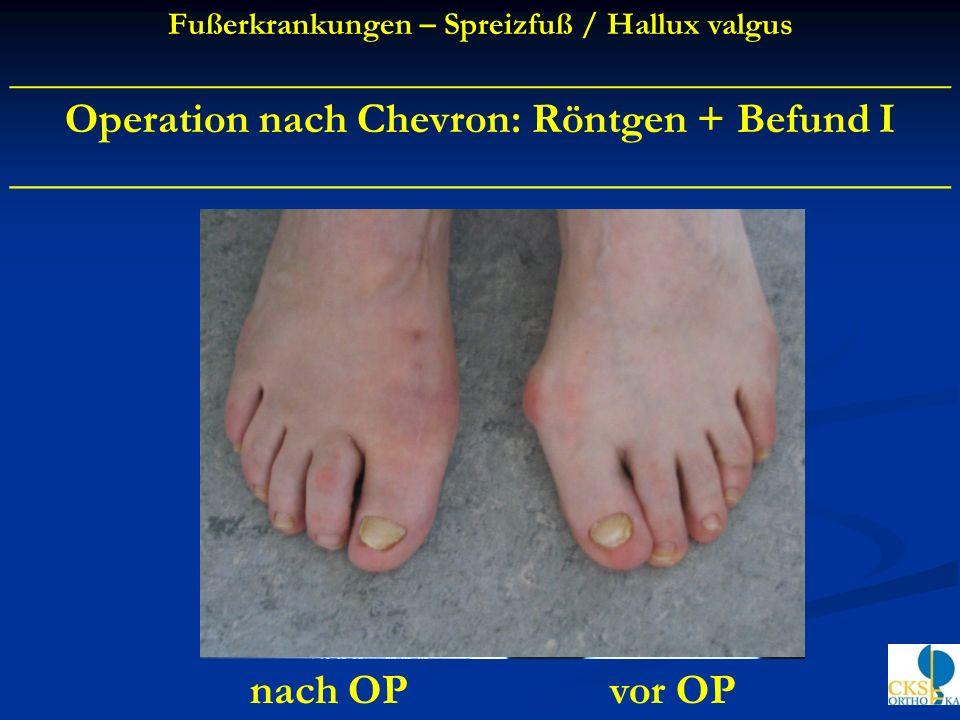 Operation nach Chevron: Röntgen + Befund I ____________________________________________ vor OPnach OP Fußerkrankungen – Spreizfuß / Hallux valgus ____