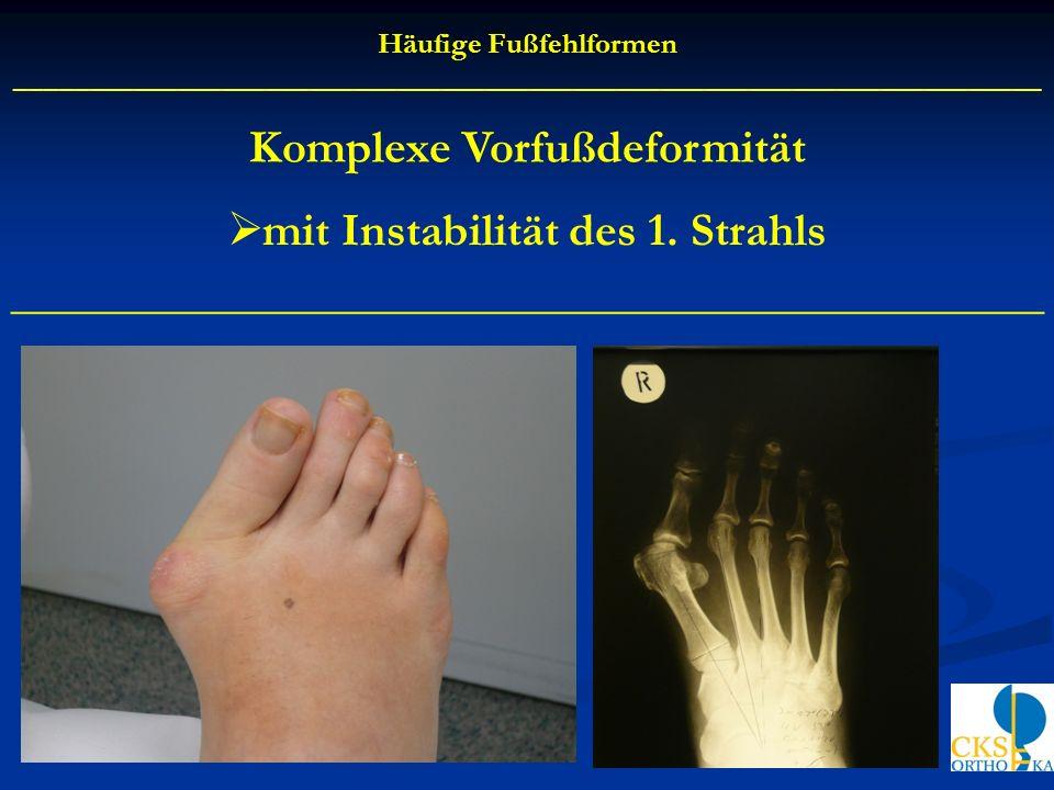 Häufige Fußfehlformen ______________________________________________________________________ Komplexe Vorfußdeformität mit Instabilität des 1. Strahls
