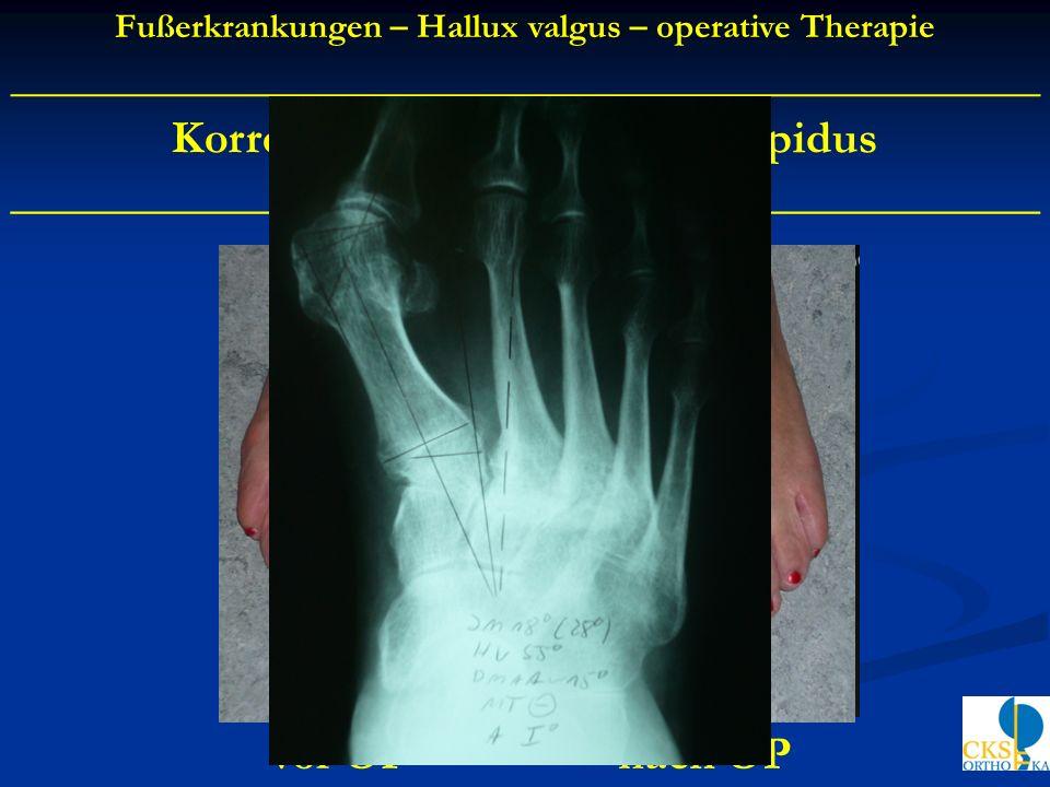 Korrektur Arthrodese nach Lapidus ____________________________________________ vor OPnach OP Fußerkrankungen – Hallux valgus – operative Therapie ____