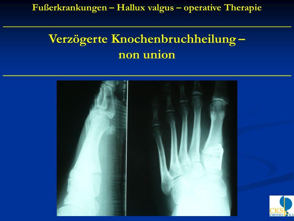 Verzögerte Knochenbruchheilung – non union ____________________________________________ Fußerkrankungen – Hallux valgus – operative Therapie _________