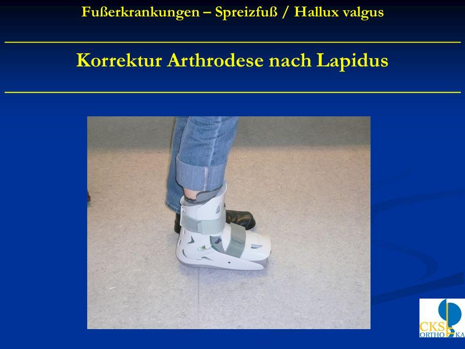 Korrektur Arthrodese nach Lapidus ____________________________________________ Fußerkrankungen – Spreizfuß / Hallux valgus ___________________________