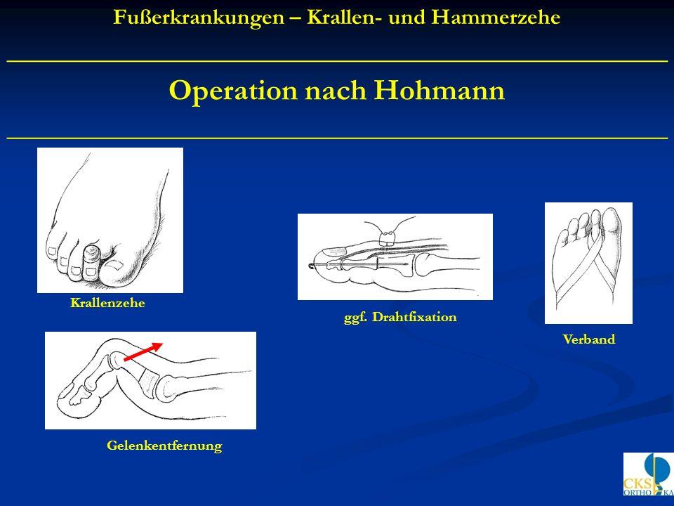 Operation nach Hohmann ____________________________________________ Krallenzehe Gelenkentfernung ggf. Drahtfixation Verband Fußerkrankungen – Krallen-