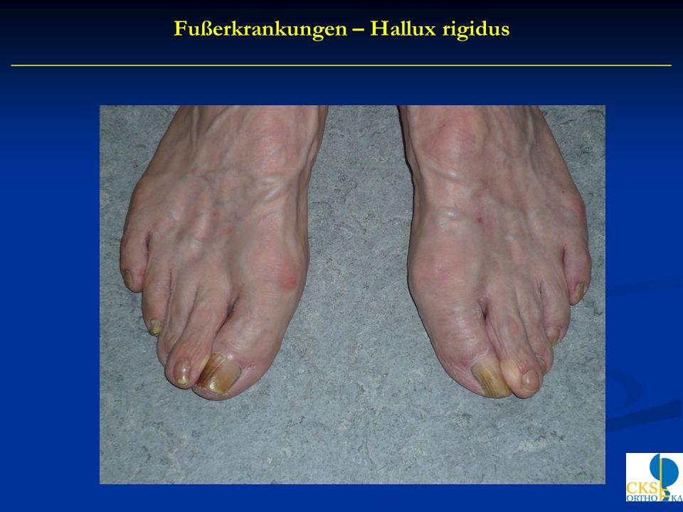 Fußerkrankungen – Hallux rigidus __________________________________________________________