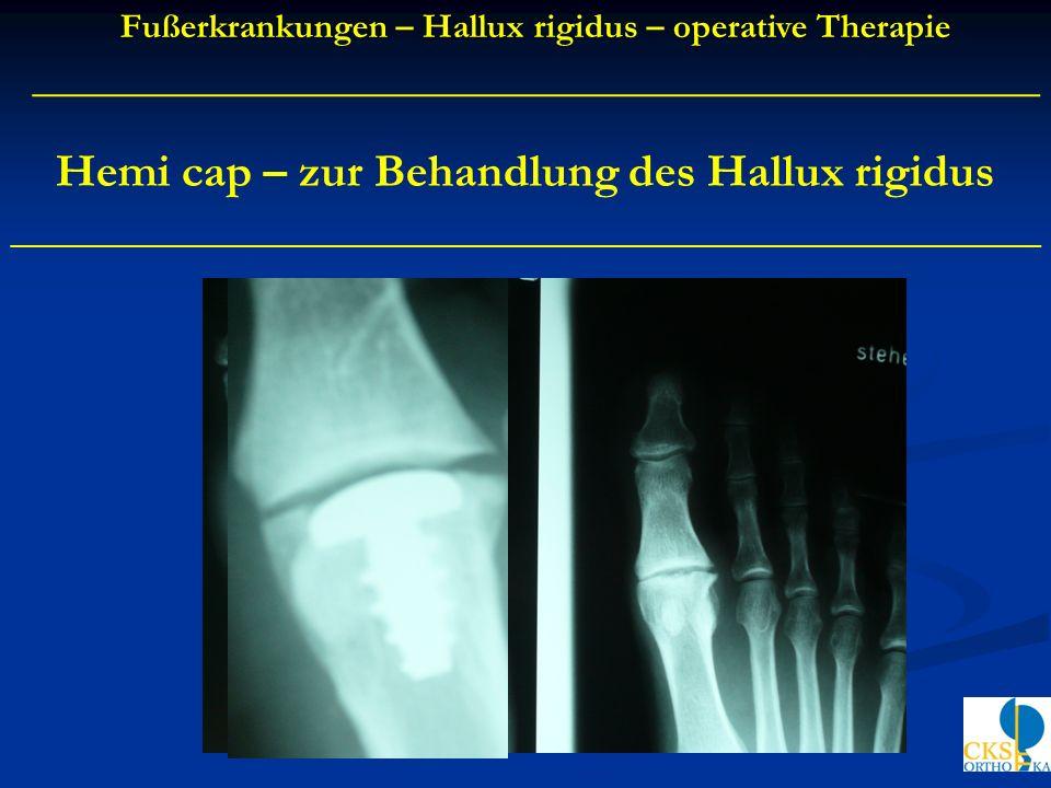 Hemi cap – zur Behandlung des Hallux rigidus ____________________________________________ Fußerkrankungen – Hallux rigidus – operative Therapie ______