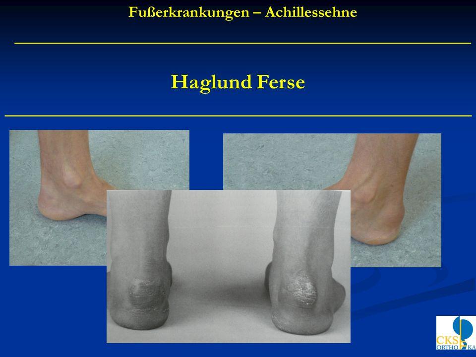 Fußerkrankungen – Achillessehne ___________________________________________ Haglund Ferse ____________________________________________