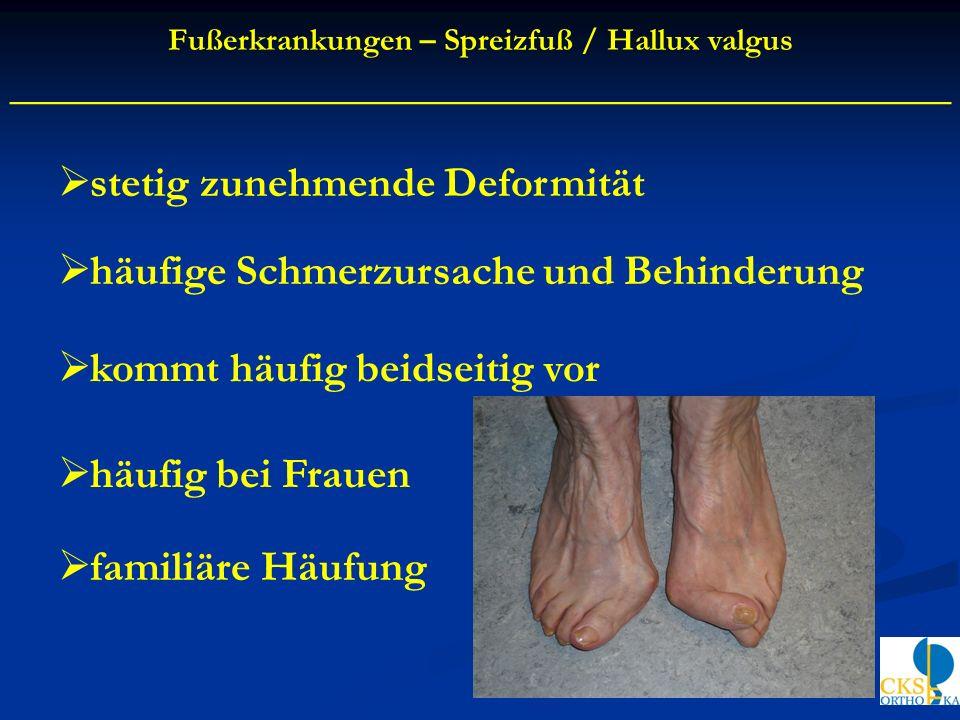 stetig zunehmende Deformität häufige Schmerzursache und Behinderung kommt häufig beidseitig vor häufig bei Frauen familiäre Häufung Fußerkrankungen –