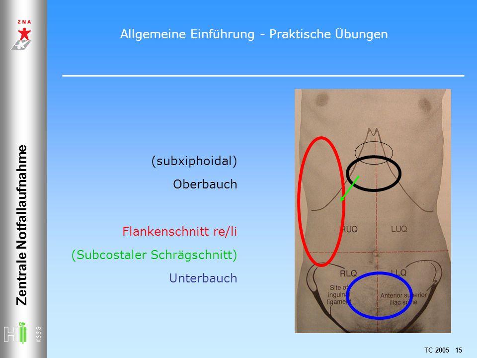 TC 2005 15 Zentrale Notfallaufnahme (subxiphoidal) Oberbauch Flankenschnitt re/li (Subcostaler Schrägschnitt) Unterbauch Allgemeine Einführung - Prakt