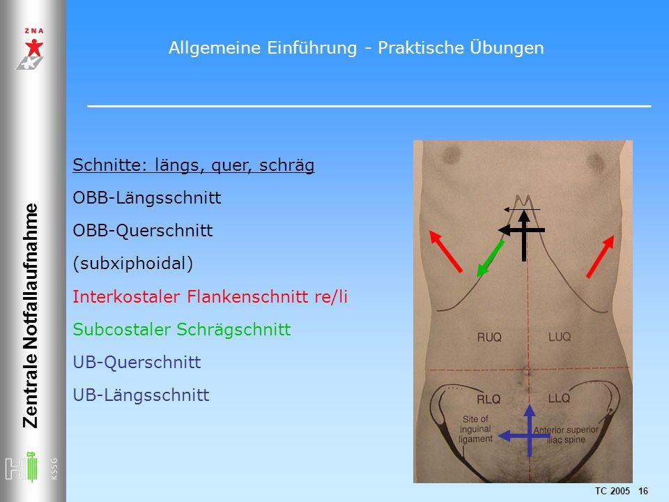 TC 2005 16 Zentrale Notfallaufnahme Schnitte: längs, quer, schräg OBB-Längsschnitt OBB-Querschnitt (subxiphoidal) Interkostaler Flankenschnitt re/li S