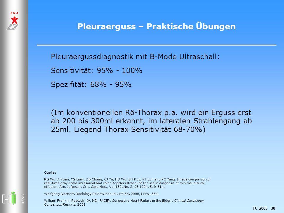 TC 2005 30 Pleuraerguss – Praktische Übungen Pleuraergussdiagnostik mit B-Mode Ultraschall: Sensitivität: 95% - 100% Spezifität: 68% - 95% (Im konvent