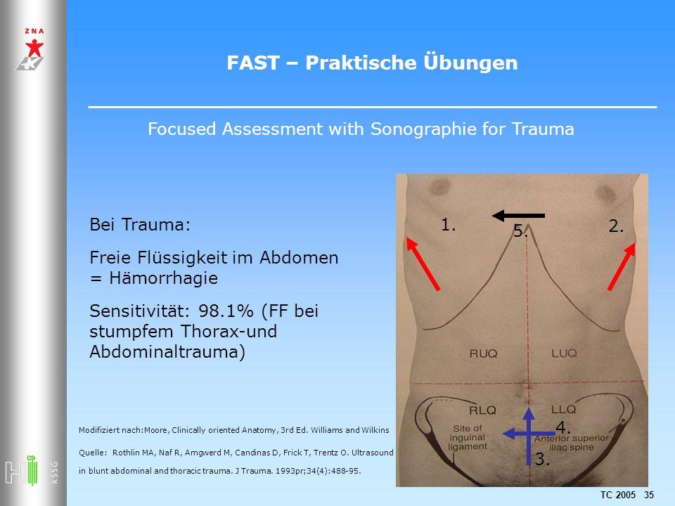 TC 2005 35 FAST – Praktische Übungen 1. 2. 3. 4. 5. Quelle: Rothlin MA, Naf R, Amgwerd M, Candinas D, Frick T, Trentz O. Ultrasound in blunt abdominal