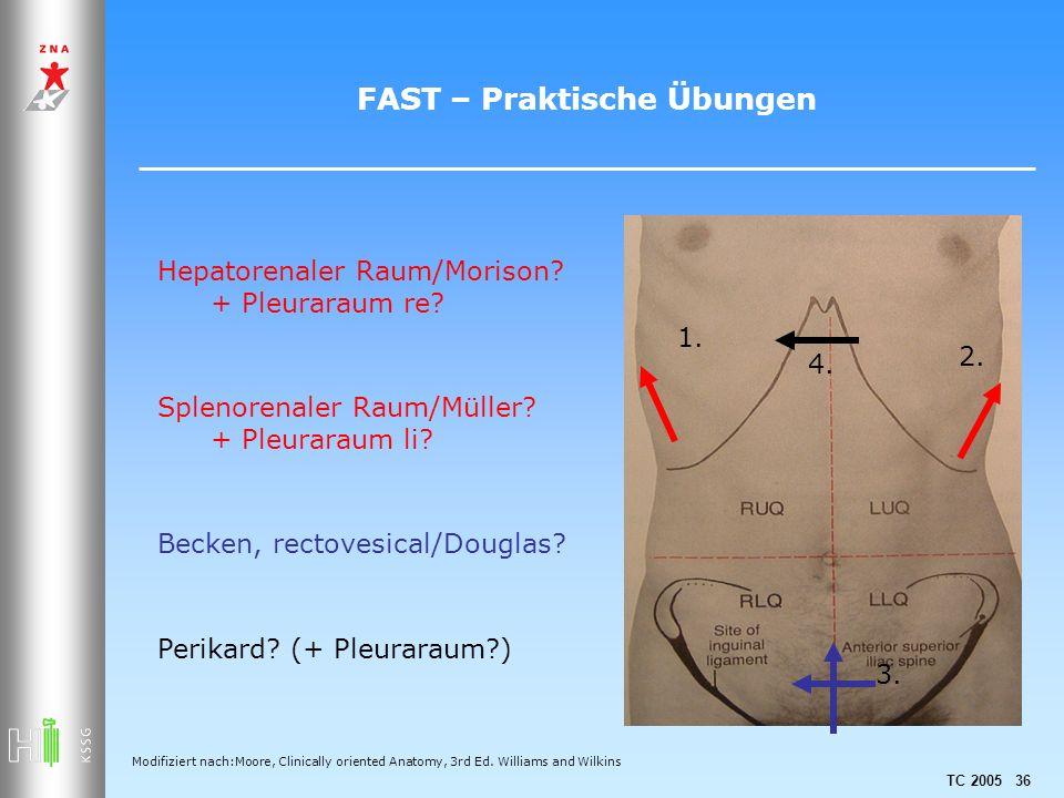 TC 2005 36 FAST – Praktische Übungen Hepatorenaler Raum/Morison? + Pleuraraum re? Splenorenaler Raum/Müller? + Pleuraraum li? Becken, rectovesical/Dou