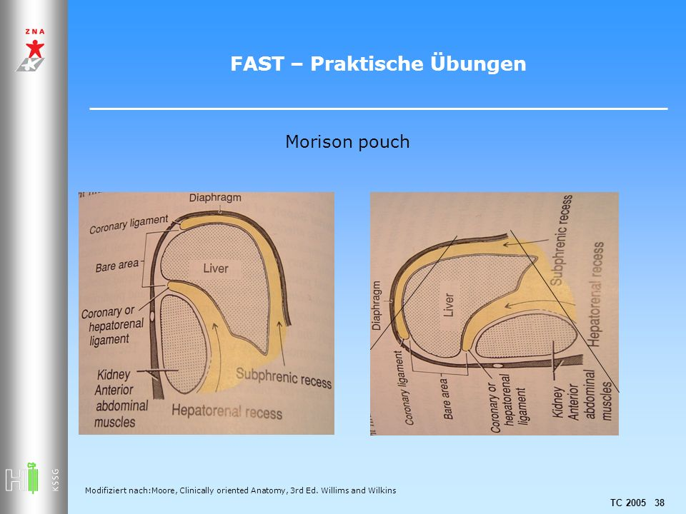 TC 2005 38 FAST – Praktische Übungen Morison pouch Modifiziert nach:Moore, Clinically oriented Anatomy, 3rd Ed.
