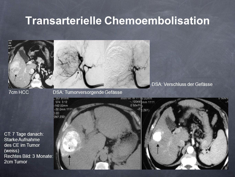 Transarterielle Chemoembolisation 7cm HCCDSA: Tumorversorgende Gefässe DSA: Verschluss der Gefässe CT: 7 Tage danach: Starke Aufnahme des CE im Tumor