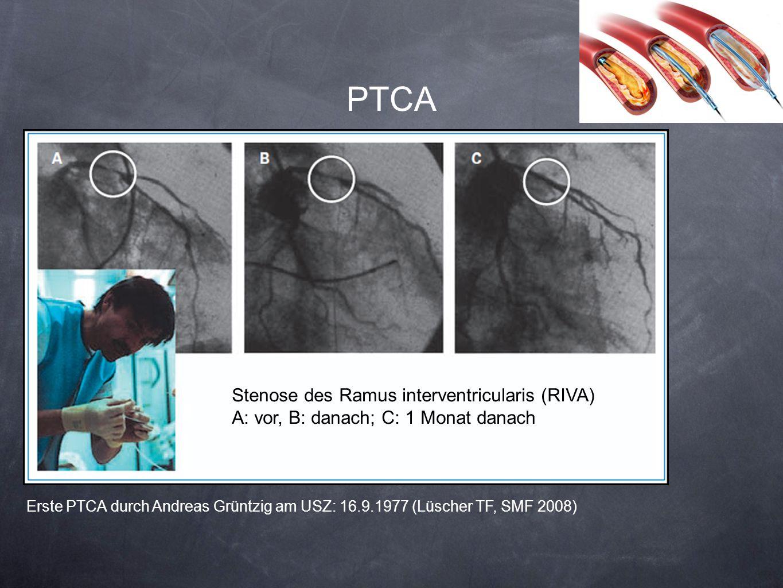 PTCA Erste PTCA durch Andreas Grüntzig am USZ: 16.9.1977 (Lüscher TF, SMF 2008) Stenose des Ramus interventricularis (RIVA) A: vor, B: danach; C: 1 Mo