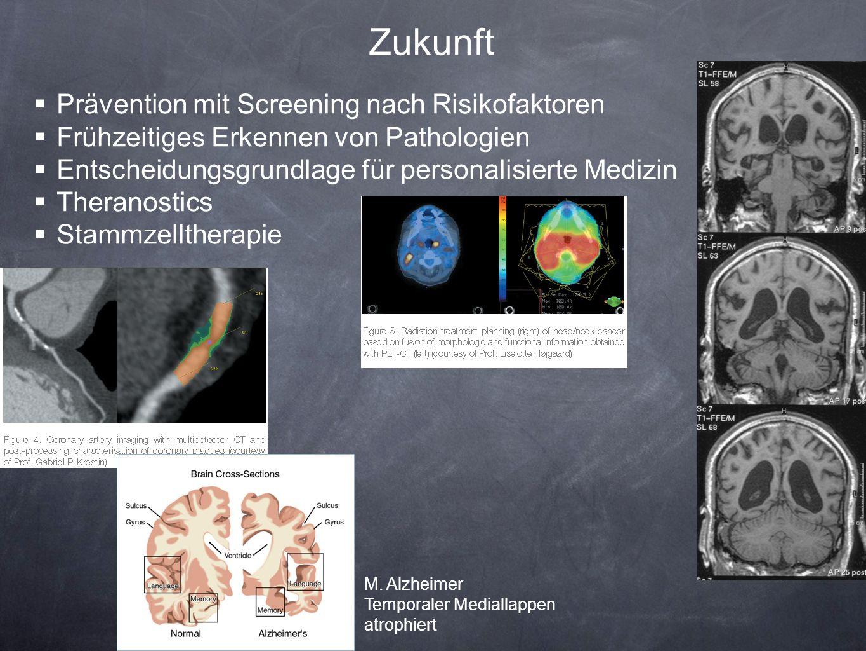 Zukunft Prävention mit Screening nach Risikofaktoren Frühzeitiges Erkennen von Pathologien Entscheidungsgrundlage für personalisierte Medizin Theranos