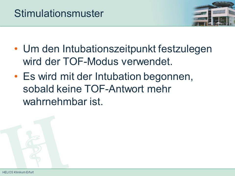 Stimulationsmuster Um den Intubationszeitpunkt festzulegen wird der TOF-Modus verwendet. Es wird mit der Intubation begonnen, sobald keine TOF-Antwort
