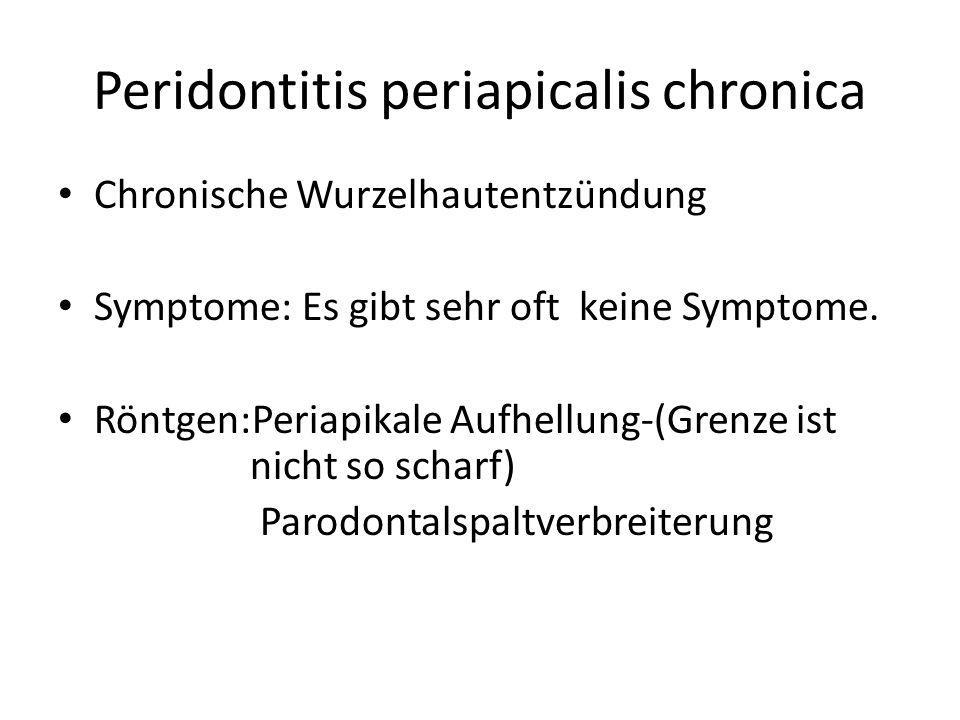 Peridontitis periapicalis chronica Chronische Wurzelhautentzündung Symptome: Es gibt sehr oft keine Symptome.