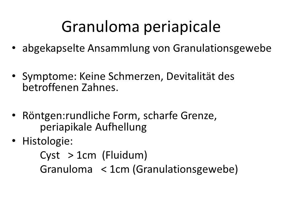 Granuloma periapicale abgekapselte Ansammlung von Granulationsgewebe Symptome: Keine Schmerzen, Devitalität des betroffenen Zahnes.