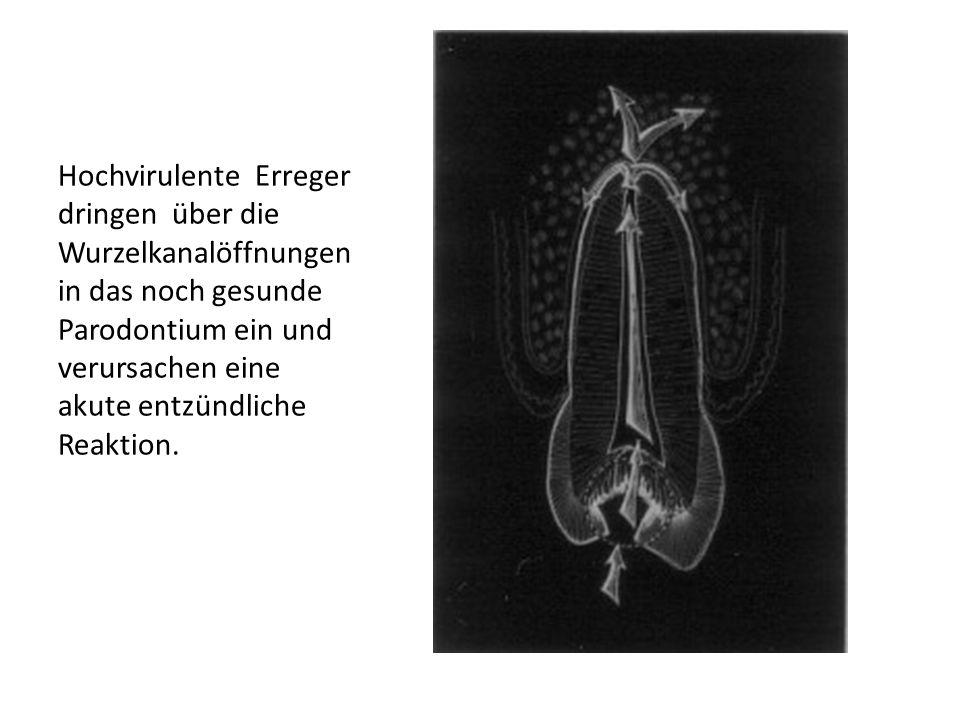 Vor der WurzelbehandlungNach der Wurzelbehandlung