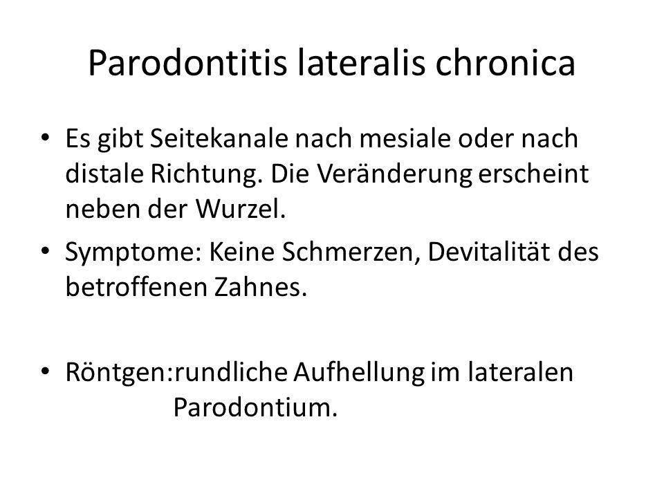 Parodontitis lateralis chronica Es gibt Seitekanale nach mesiale oder nach distale Richtung.