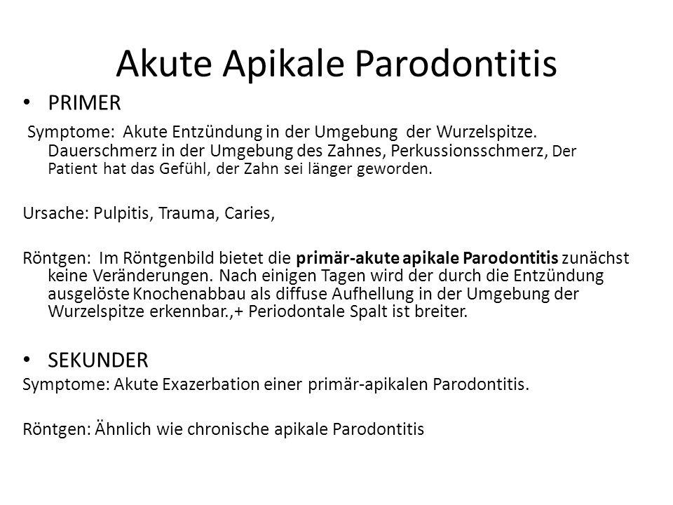 Akute Apikale Parodontitis PRIMER Symptome: Akute Entzündung in der Umgebung der Wurzelspitze.
