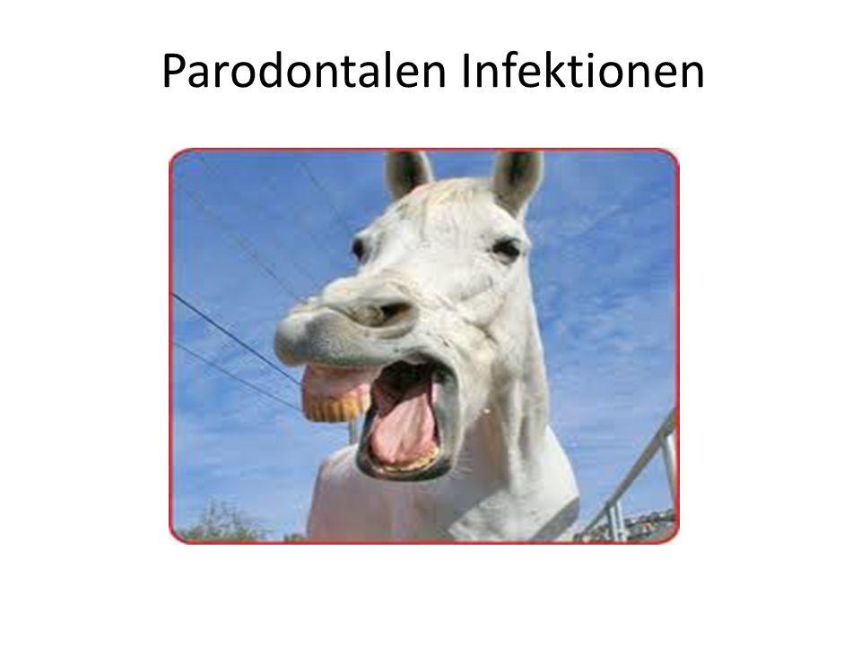 Parodontalen Infektionen