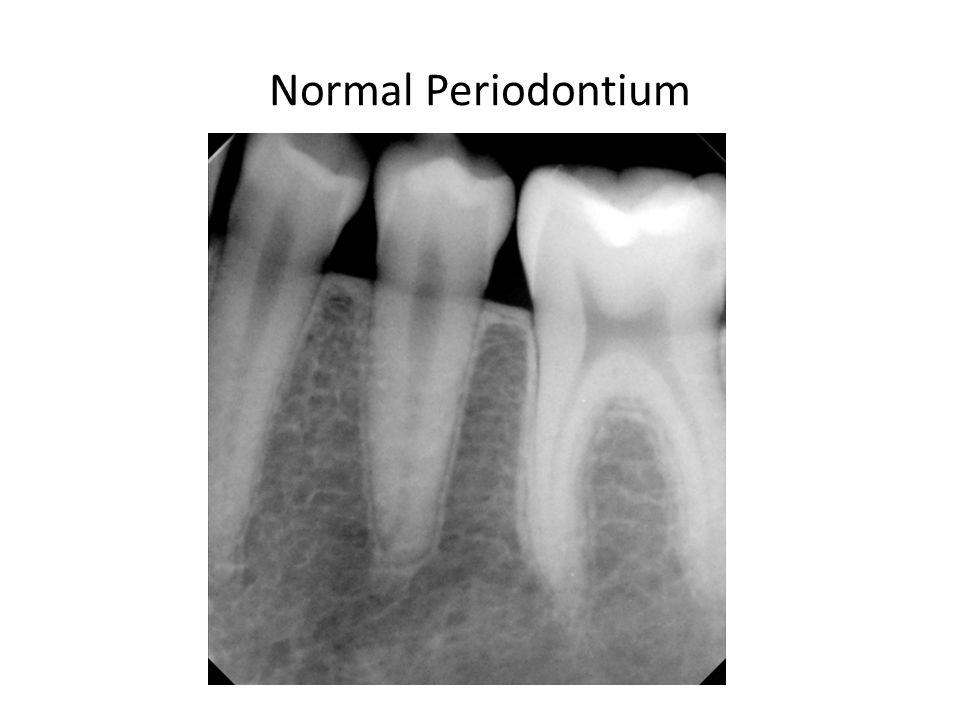 Normal Periodontium
