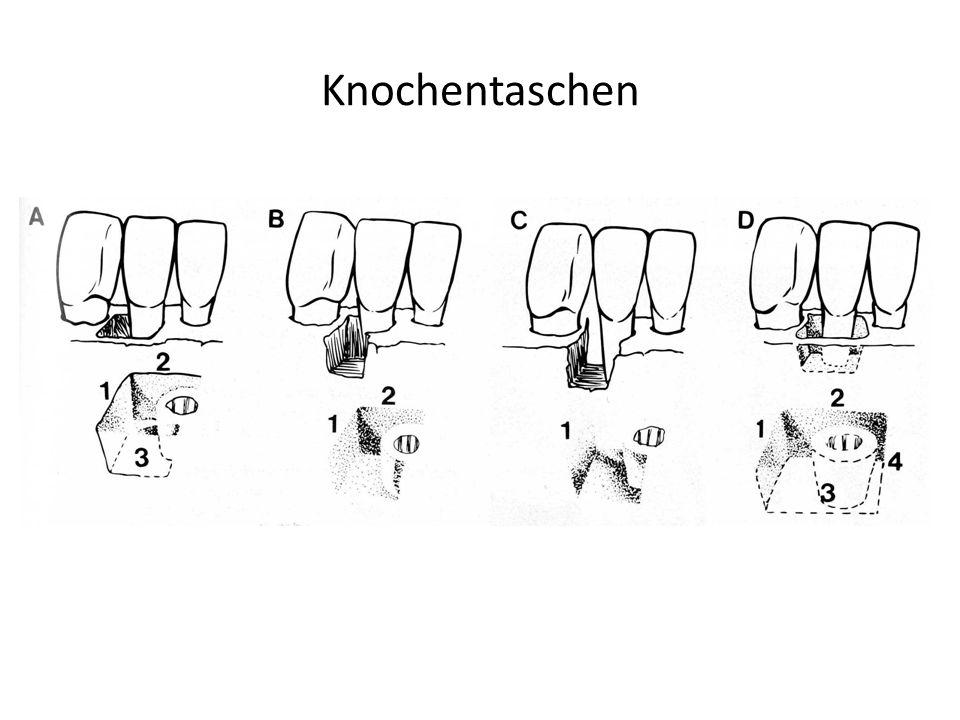 Knochentaschen