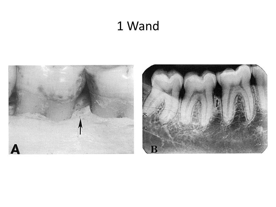 1 Wand