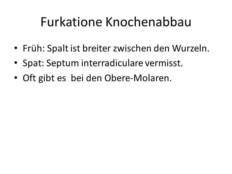 Furkatione Knochenabbau Früh: Spalt ist breiter zwischen den Wurzeln. Spat: Septum interradiculare vermisst. Oft gibt es bei den Obere-Molaren.