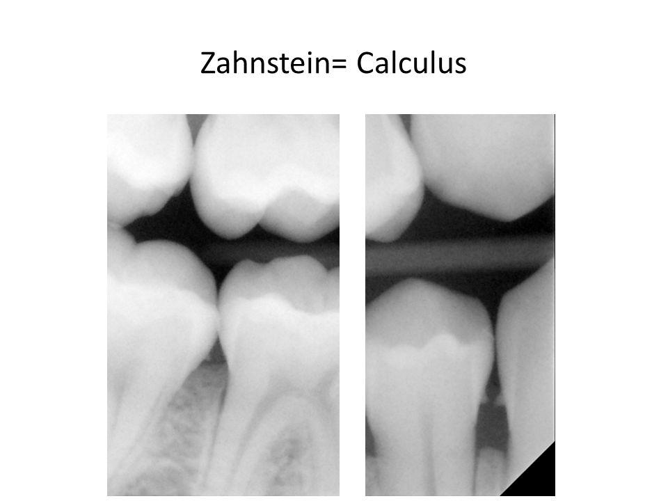 Zahnstein= Calculus