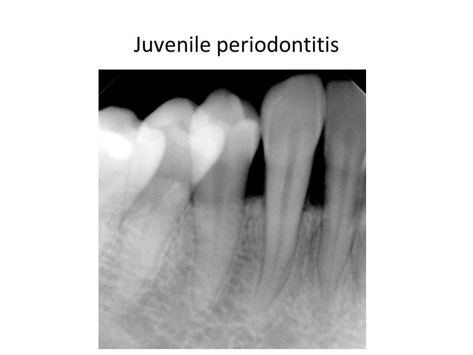 Juvenile periodontitis