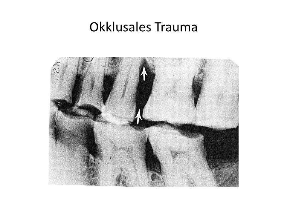 Okklusales Trauma