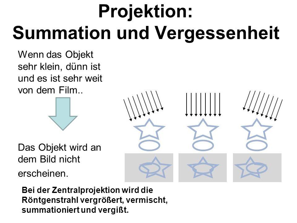 Projektion: Summation und Vergessenheit Wenn das Objekt sehr klein, dünn ist und es ist sehr weit von dem Film..
