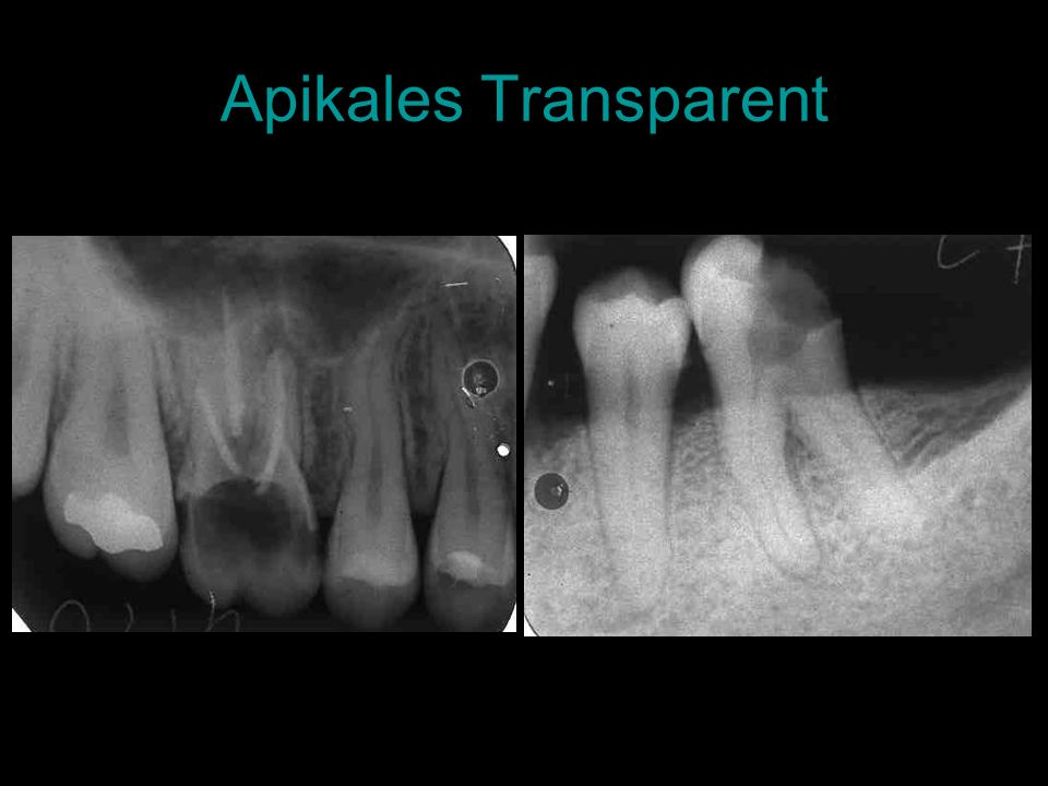 Apikales Transparent