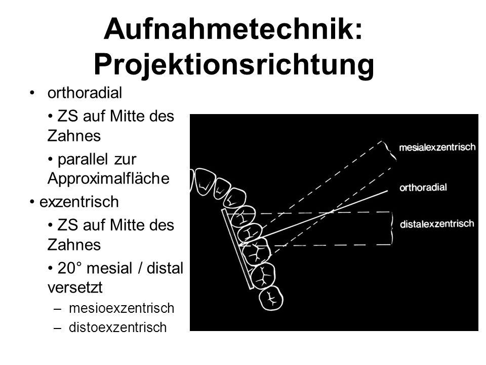Aufnahmetechnik: Projektionsrichtung orthoradial ZS auf Mitte des Zahnes parallel zur Approximalfläche exzentrisch ZS auf Mitte des Zahnes 20° mesial / distal versetzt –mesioexzentrisch –distoexzentrisch