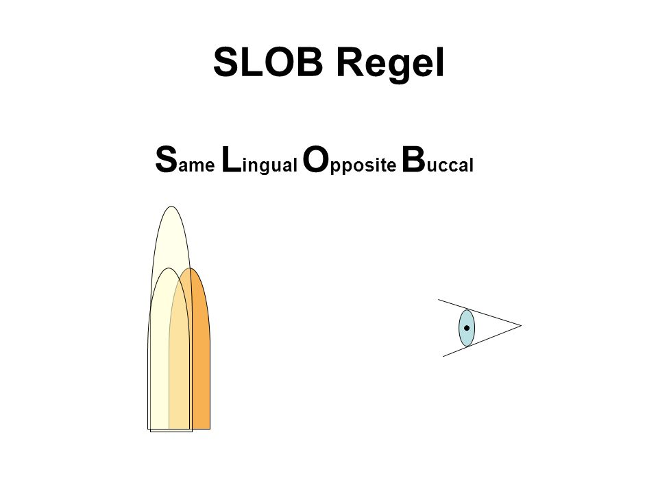 SLOB Regel S ame L ingual O pposite B uccal