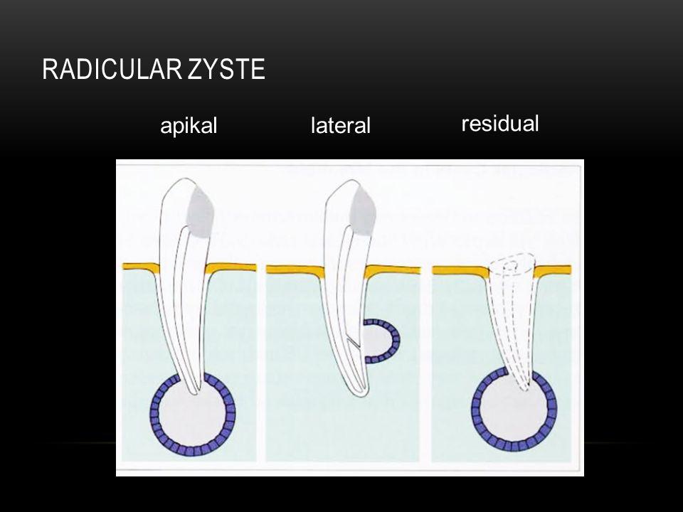 RADICULAR ZYSTE apikallateral residual
