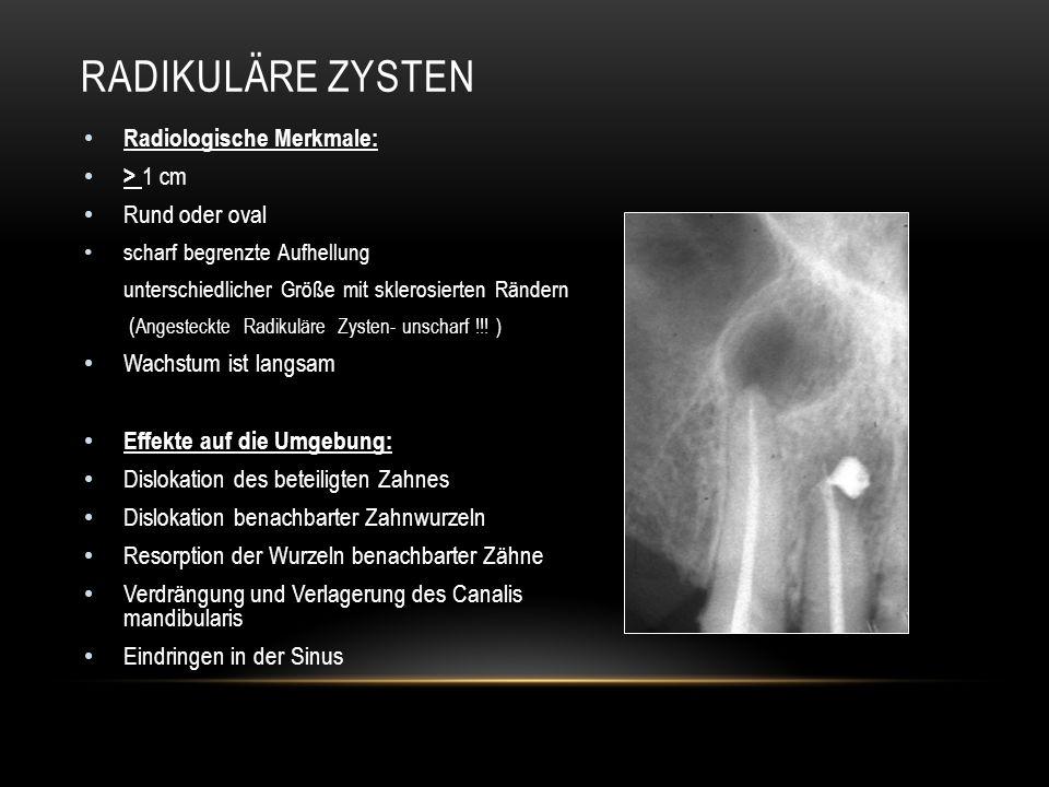 Radiologische Merkmale: > 1 cm Rund oder oval scharf begrenzte Aufhellung unterschiedlicher Größe mit sklerosierten Rändern ( Angesteckte Radikuläre Zysten- unscharf !!.