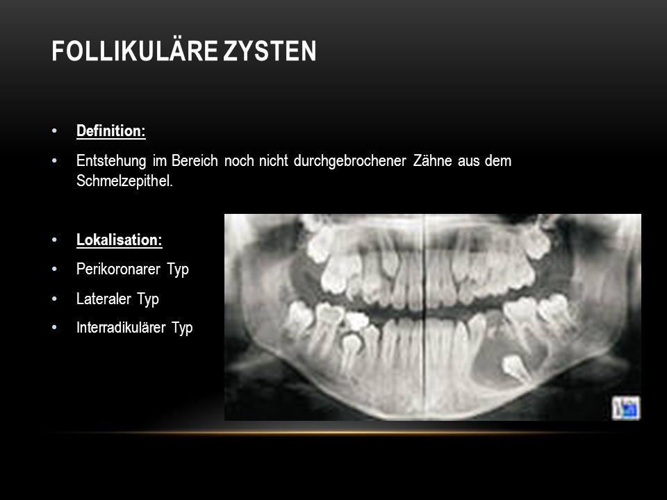 Definition: Entstehung im Bereich noch nicht durchgebrochener Zähne aus dem Schmelzepithel.