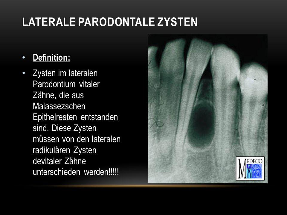 LATERALE PARODONTALE ZYSTEN Definition: Zysten im lateralen Parodontium vitaler Zähne, die aus Malassezschen Epithelresten entstanden sind.