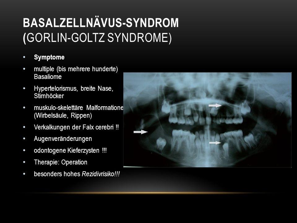 Symptome multiple (bis mehrere hunderte) Basaliome Hypertelorismus, breite Nase, Stirnhöcker muskulo-skelettäre Malformationen (Wirbelsäule, Rippen) Verkalkungen der Falx cerebri !.