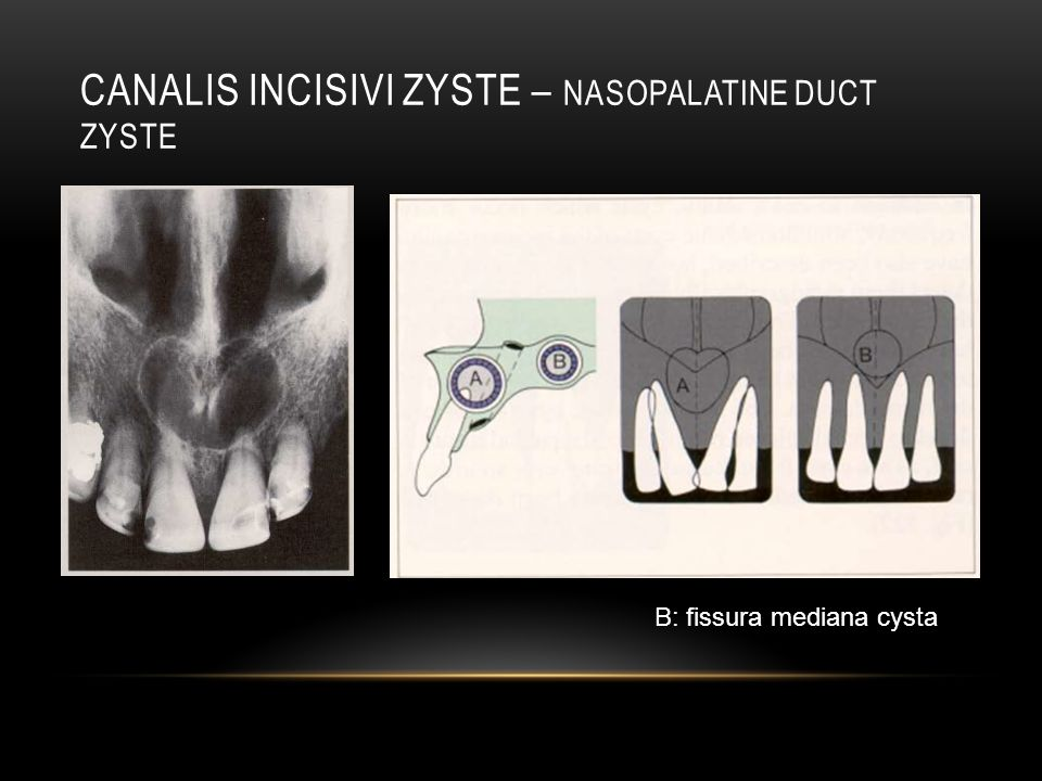 CANALIS INCISIVI ZYSTE – NASOPALATINE DUCT ZYSTE B: fissura mediana cysta