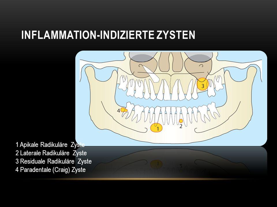 INFLAMMATION-INDIZIERTE ZYSTEN 1 Apikale Radikuläre Zyste 2 Laterale Radikuläre Zyste 3 Residuale Radikuläre Zyste 4 Paradentale (Craig) Zyste