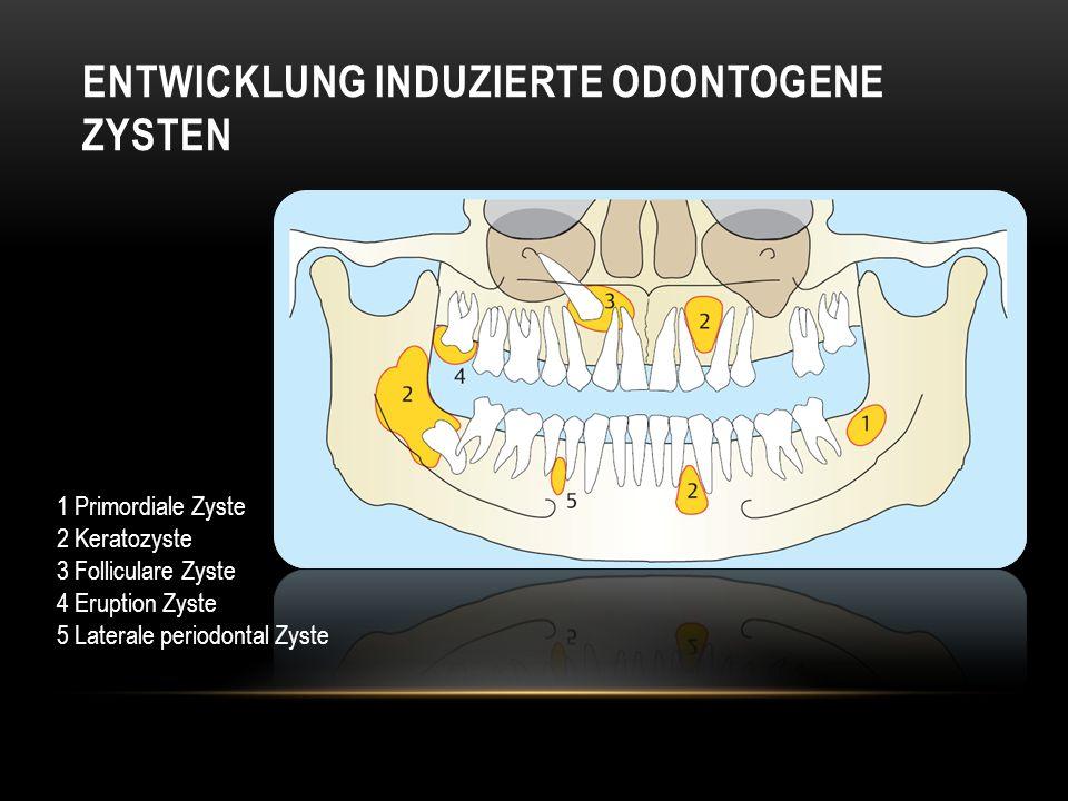 ENTWICKLUNG INDUZIERTE ODONTOGENE ZYSTEN 1 Primordiale Zyste 2 Keratozyste 3 Folliculare Zyste 4 Eruption Zyste 5 Laterale periodontal Zyste