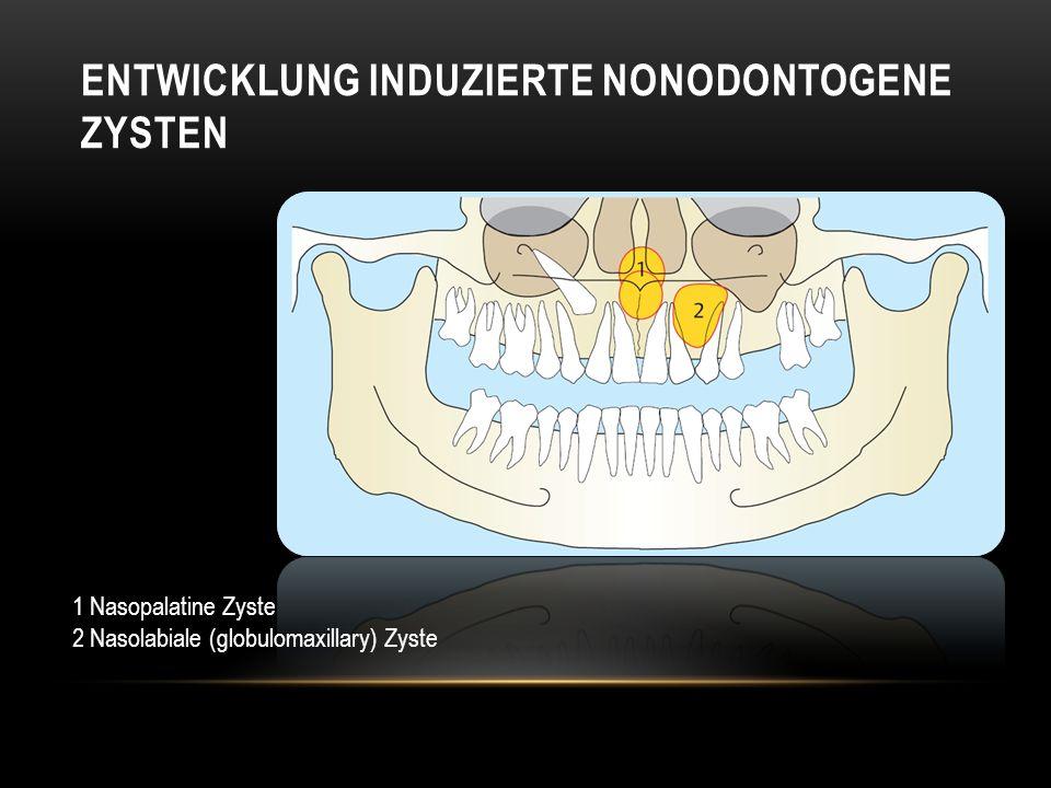 ENTWICKLUNG INDUZIERTE NONODONTOGENE ZYSTEN 1 Nasopalatine Zyste 2 Nasolabiale (globulomaxillary) Zyste