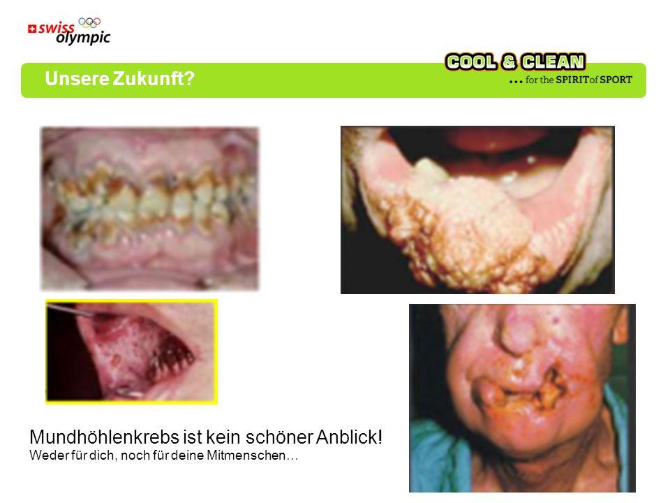 Mundhöhlenkrebs ist kein schöner Anblick! Weder für dich, noch für deine Mitmenschen… Unsere Zukunft?