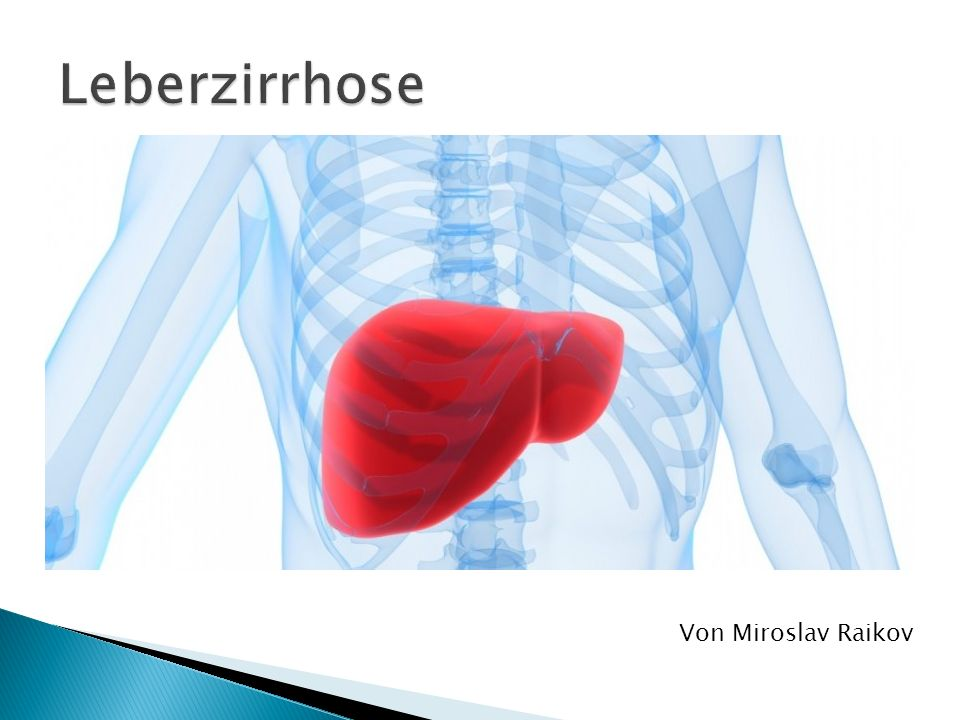 Krankhafter Zustand der Leber Die Leber verhärtet sich und schrumpft in narbiges Bindegewebe sich umwandeln