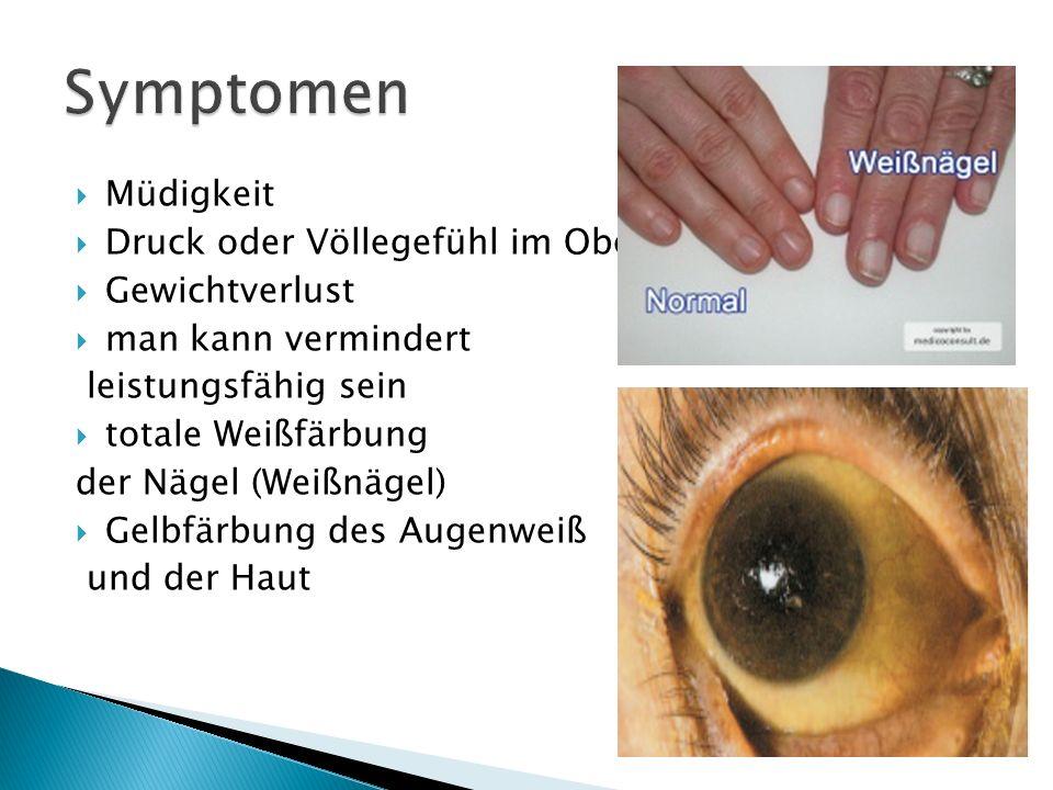 Müdigkeit Druck oder Völlegefühl im Oberbauch Gewichtverlust man kann vermindert leistungsfähig sein totale Weißfärbung der Nägel (Weißnägel) Gelbfärb
